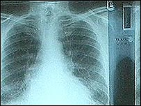 X-ray of asbestos damaged lungs