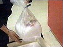 Organ in a bag