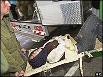 Suicide bomb casualty