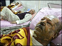 The wounded in hospital in Irbil
