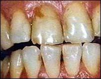 Estos si son problemas dentales...