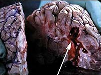 Graphic images of a human brain after a stroke due to smoking