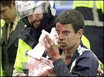 Injured blast victim