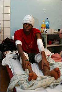 Студет из Танзании - жертва питерских скинхедов