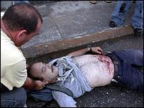 Manifestante muerto de bala (Foto cortes�a de Nicol�s Pineda/TalCual)