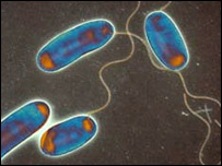 Legionella bacteria: Courtesy of the Science Photo Library