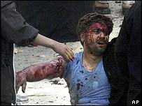 Wounded man in Karbala