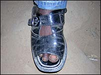 Nigerian guide's foot
