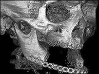 Una tomograf�a de la mand�bula del paciente - (Foto - The Lancet)