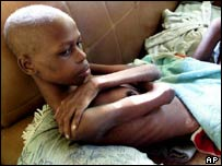 A South African, one of thousands infected with HIV/AIDS.