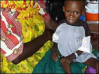 Adam, a malnourished child at Abu Shouk camp in Darfur, Sudan