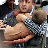 Man carries injured child from the school