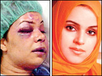 Rania al-Baz before and after her beating (Arab News)