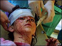 Sobreviviente de la toma a la escuela en Beslan.