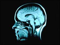 Escáner de un cerebro humano