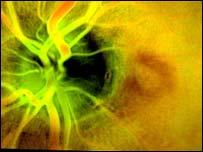 Healthy retina