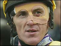 Tony McCoy broke his cheekbone in three places in February