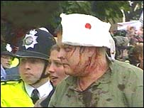 An injured protester