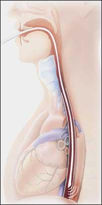 image of cardio Q