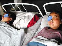 Children in the Peoples Hospital in Sinujiu, 25 April 2004