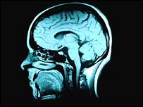 MRI scan of the brain, Corbis