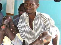 An Meru prison inmate with open wounds in a Kenyan hospital