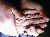 Image of arthritic hands