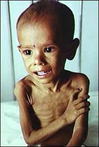 Desnutricion y pobreza en el Mundo