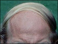 The comb-over in action (BBC)