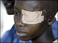 Burundian injured in an FNL attack