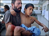 Wounded Palestinian boy being brought to hospital