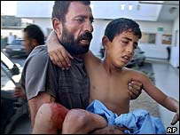 Wounded Palestinian boy being carried in the Jabaliya refugee camp