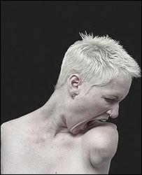 One of Alison Lapper's self-portraits