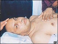 Anwar Choudhury in hospital in Sylhet