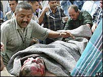 An injured man is stretchered away