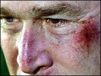Presidente George Bush luego de desmayarse por un pretzel que comi�.