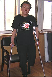 Qi Zhiyong on crutches