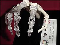 Hand model with the metal joint - courtesy of the University of Hong Kong