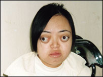 Nguyen Thi Van Long, who has speech and hearing problems