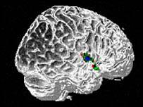 Escáner cerebral.