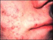 Person with acne