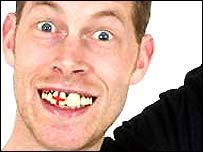 Supporters teeth from sillyjokes.co.uk