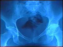 a hip x-ray