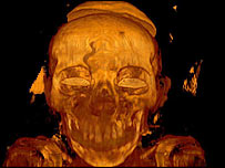 The Mummy X-Ray