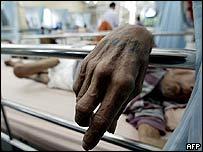 مريض بالايدز في بانكوك