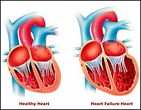 Image of heart failure