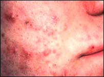 Image of acne