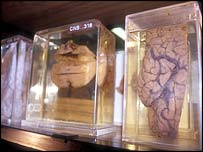 Muetras de cerebro