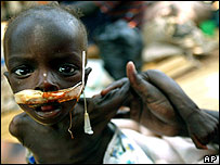 Injured, starving child with feeding tube is held by his mother in Gulu, Uganda