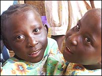 Conjoined twins Maria and Consolatha